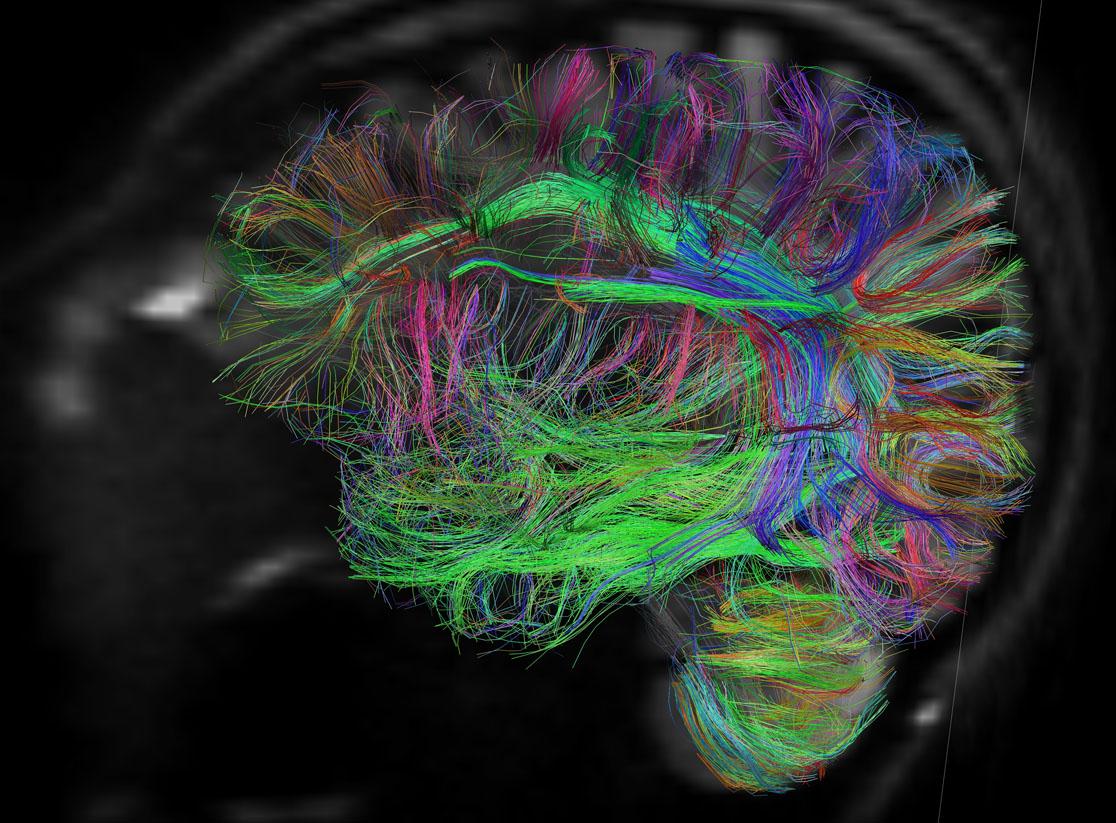 Van-Wedeen-brain-scanner